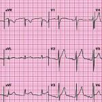 Pericardite, fibrillazione atriale, inr e vitamina k