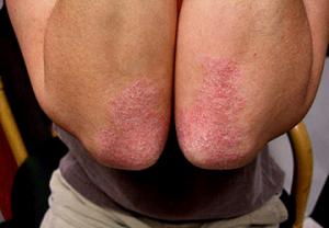 Appezzamenti di dermatite atopic per bambini